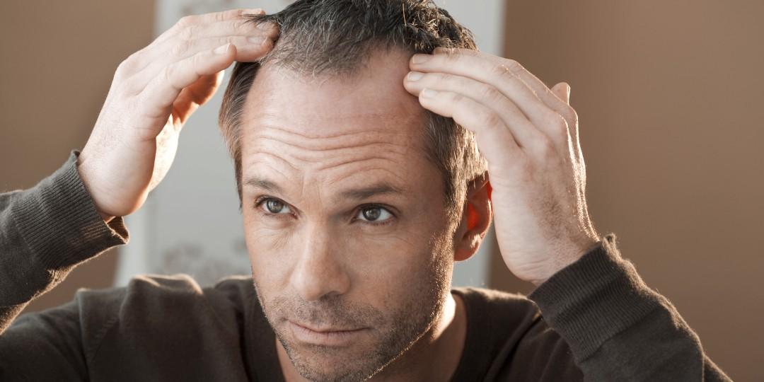 Wat te doen tegen haaruitval? 3 tips om je haargroei te stimuleren!